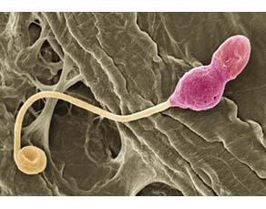 Spermatozoïde mal formé