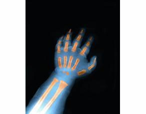 Radiographie de la main d'un nourrisson