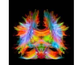 Tractographie du cerveau humain
