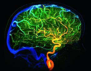 L'irrigation sanguine d'un organe, le cerveau humain