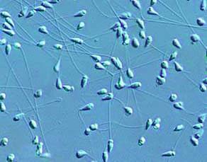 Spermatozoïdes d'oursin