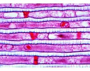 Poumon de l'Araignée Épeire diadème vu au microscope