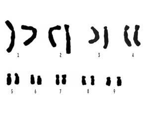 Le caryotype classé d'une espèce végétale (Haemanthus multiflorus)