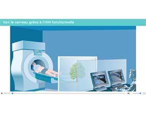 Voir les zones activées par le mouvement (IRM fonctionnelle)
