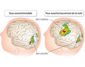 Des zones actives en surface du cerveau
