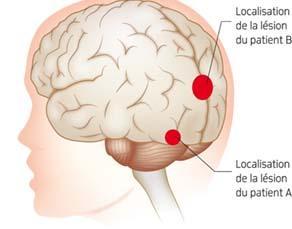 Localisation des lésions cérébrales de deux patients