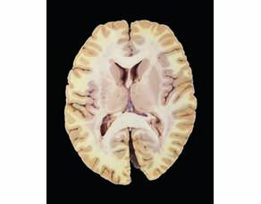 Coupe de cerveau humain