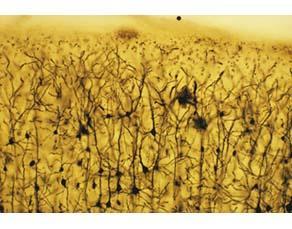 Des neurones dans la substance grise