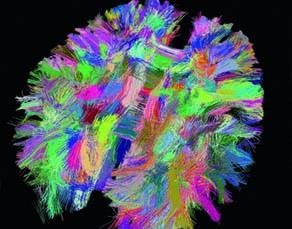 Des zones cérébrales reliées par les prolongements des neurones