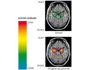 Images cérébrales et privation de sommeil