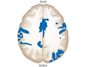 Effets à long terme de la cocaïne sur le cerveau