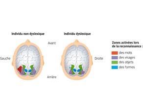 Zones du cerveau stimulées dans la reconnaissance de différents éléments