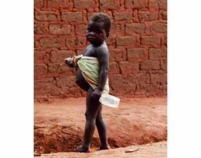 Un enfant atteint de kwashiorkor