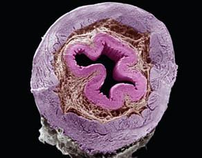 Coupe transversale d'œsophage