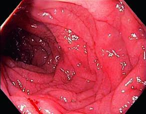 Intestin grêle d'un individu atteint de la maladie coeliaque