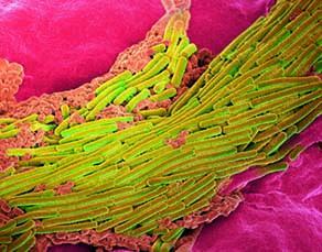 L'origine d'une infection intestinale : la multiplication de la bactérie Clostridium difficile