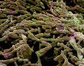 Effet d'un antibiotique sur des bactéries