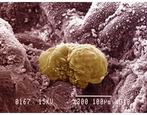Nidation de l'embryon