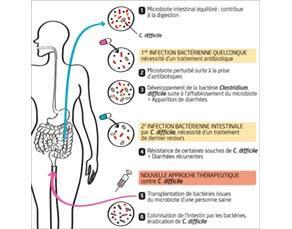 Principe de la transplantation de microbiote fécal avec l'exemple de l'infection à Clostridium difficile