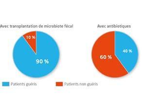 Comparaison entre les résultats d'une transplantation de microbiote fécal et la prise d'antibiotiques