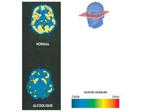 Les effets de la consommation régulière d'alcool sur le cerveau
