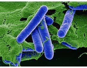 Des bactéries de l'espèce Clostridium botulinum