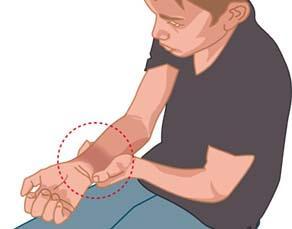 Adolescent qui s'est blessé au poignet