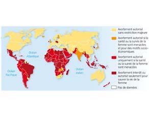 L'IVG dans le monde
