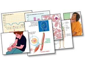 Les symptômes de la lutte contre une infection persistante